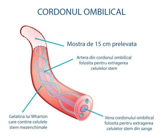 Celulele stem mezenchimale